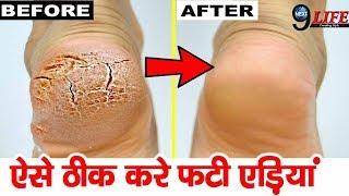 Cracked Heels Treatment   फटी एड़ियों से ऐसे पाए निजात