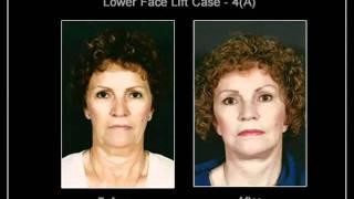 Face Lift Toronto Thumbnail