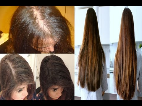 How To Use Castor Oil For Hair Growth Castor Oil And Hair Growth See