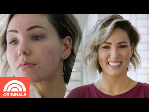 Adult Acne: How 5 Women Control Their Breakouts | Today