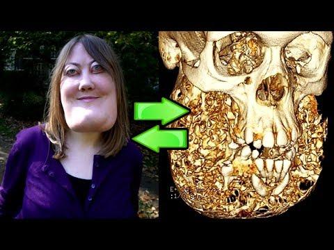 Essa Mulher Se Chama Victoria Wright Ela Tem uma Doença Rara, e o que Ela Disse Vai Te Surpreender!