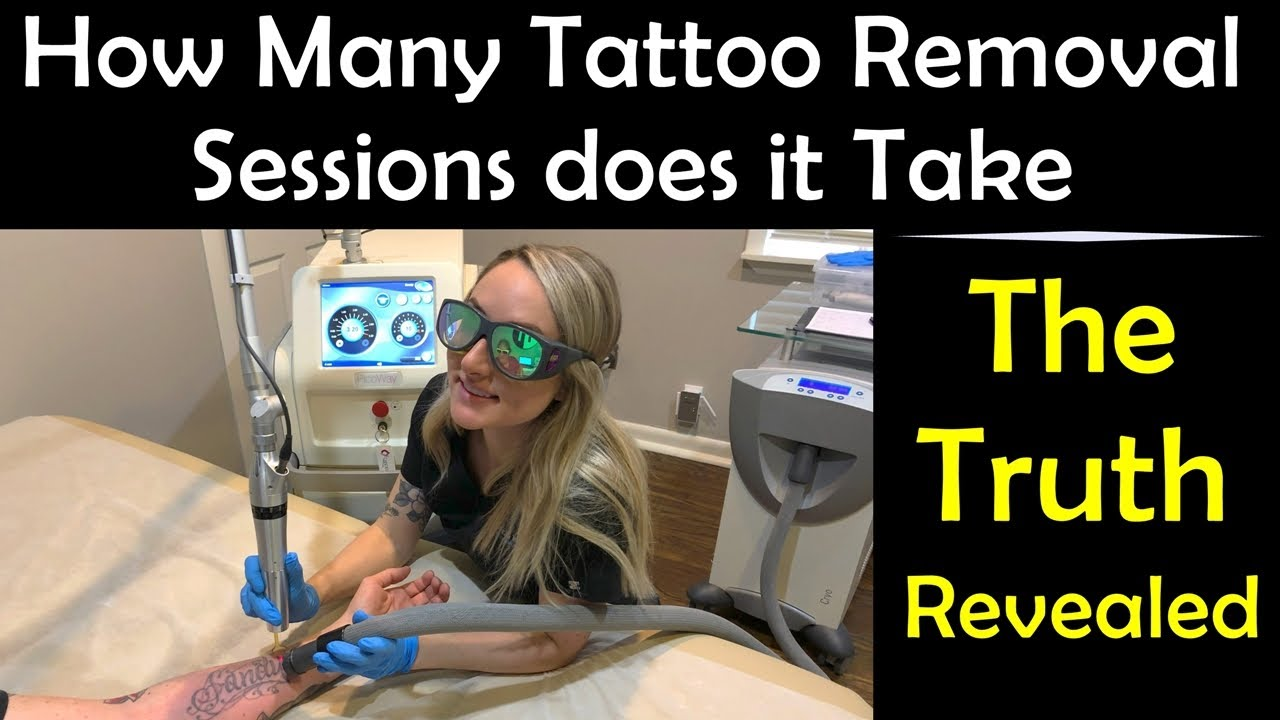 How Many Tattoo Removal Sessions Does It Take - The Truth ...