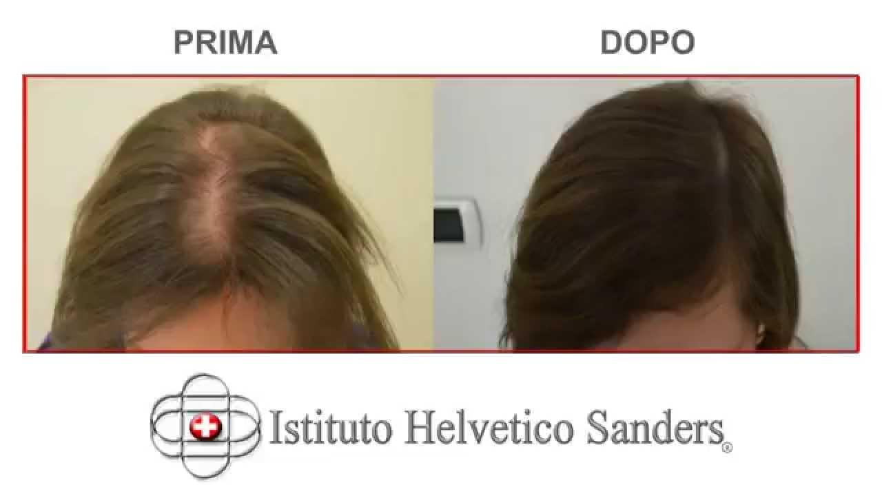 Trapianto capelli donna: nuove immagini prima e dopo - YouTube