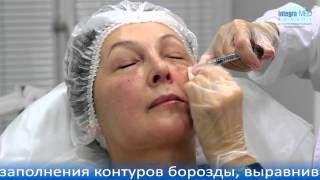 Коррекция носослезной борозды контурной пластикой