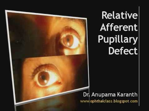 Ophthalmology - Relative Afferent Pupillary Defect (RAPD)