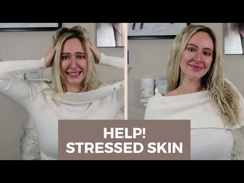 Skincare Advice | How Hormones & STRESS Affect Your SKIN | CURE Stressed Skin