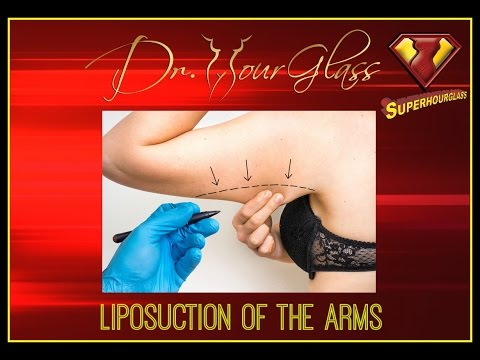 liposuction-of-the-arms-dr.cortes-houston-plastic-surgeon-youtube