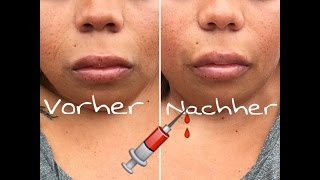 Nasolabialfalten unterspritzen 💉 / KleeneMelle81