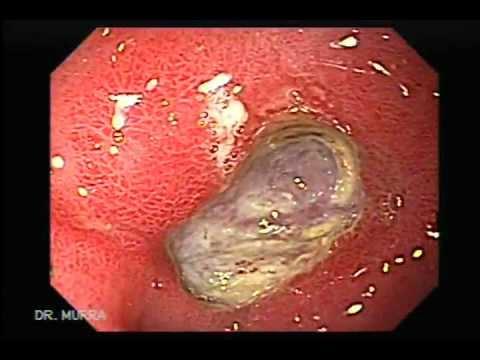 úlceras sangrantes que es