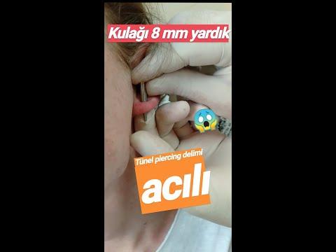 TÜNEL DELİMİ- ACILI