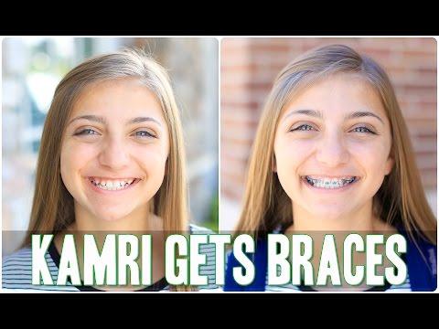 Kamri Gets Braces!   Behind the Braids Ep.4