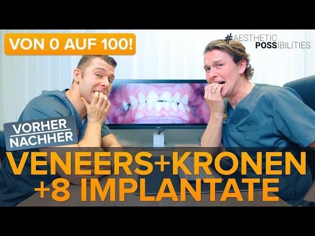 8 Implantate / 6 Veneers / 10 Zirkon Keramikkronen - Kompletter Fall, krasser vorher/nachher Effekt