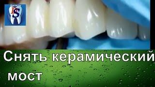Как снять керамическую коронку или мост с зубов не разрезая его. Стоматологическое оборудование(В этом видео мы вам расскажем как можна снять керамический мост не разрезая его. Как всегда с вами Дантист..., 2015-08-28T09:32:55.000Z)