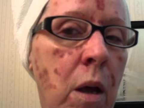 Vbeam Pulsed Dye Laser Treatment 4 Days After By Shirl Williams