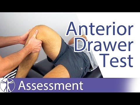 Anterior Drawer Test⎟Anterior Cruciate Ligament Rupture