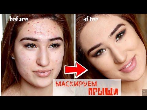 Как замаскировать ПРЫЩИ? SOS Проблемная кожа