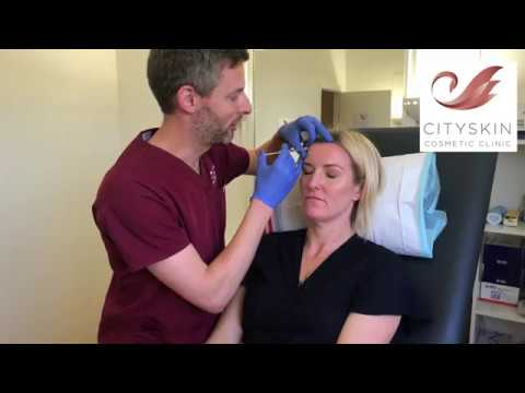 Forehead treatment with anti-wrinkle injections