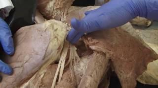 Ciatico miembro inferior nervio