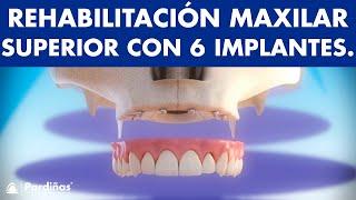 Maxilar superior - Rehabilitación del maxilar con 6 implantes ©