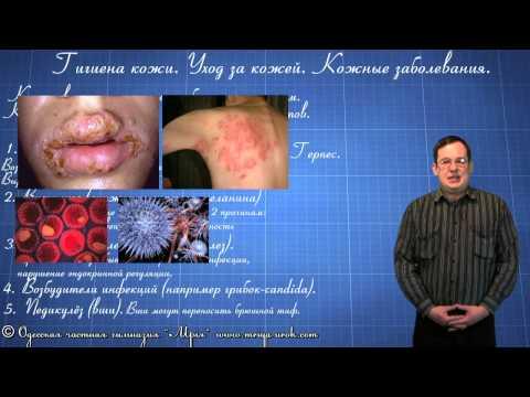 Гигиена кожи. Уход за кожей. Кожные заболевания