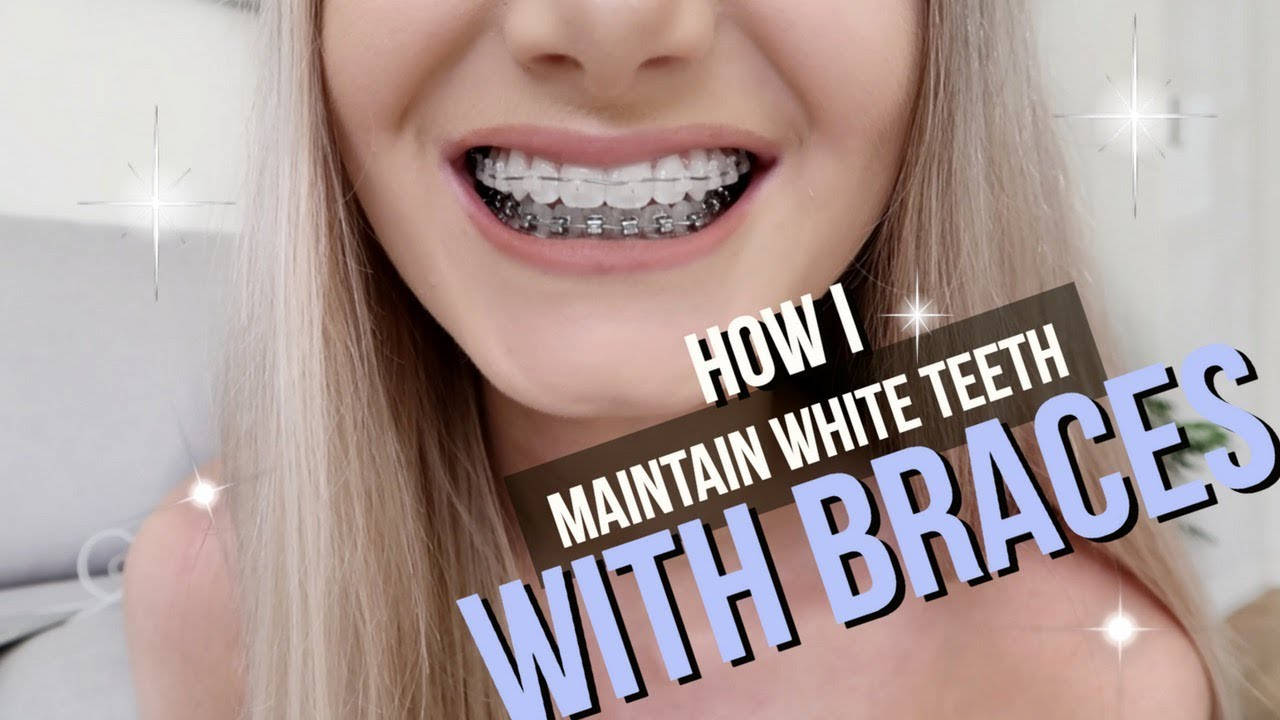 How I Keep My Teeth White With Braces Youtube
