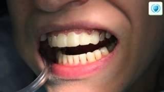 Виниры   Показательная работа на передних зубах