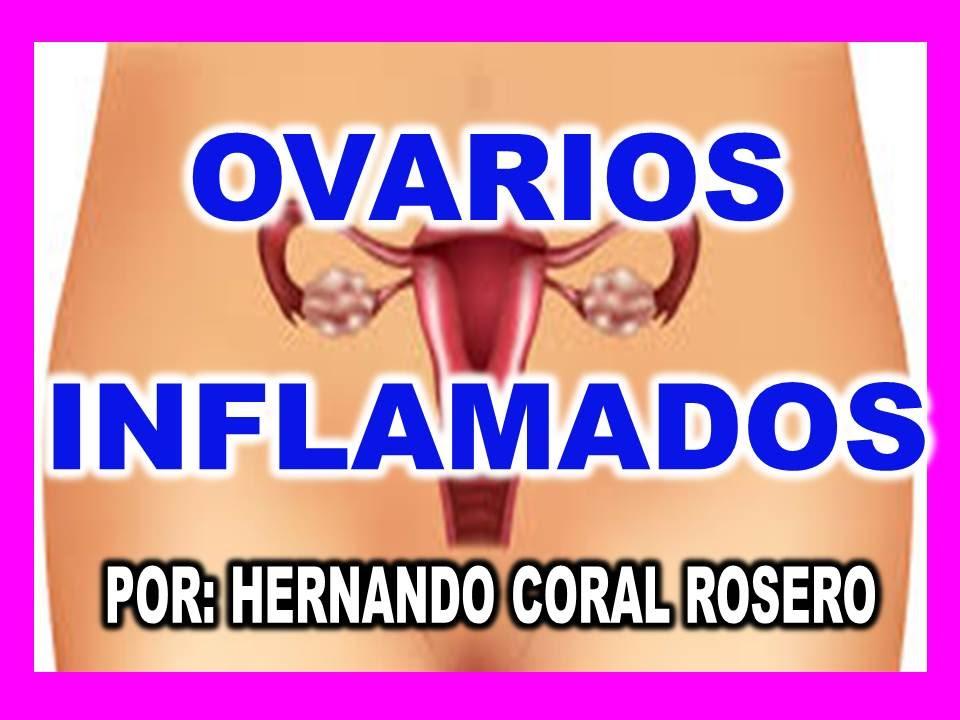 que tomar para la inflamacion delos ovarios