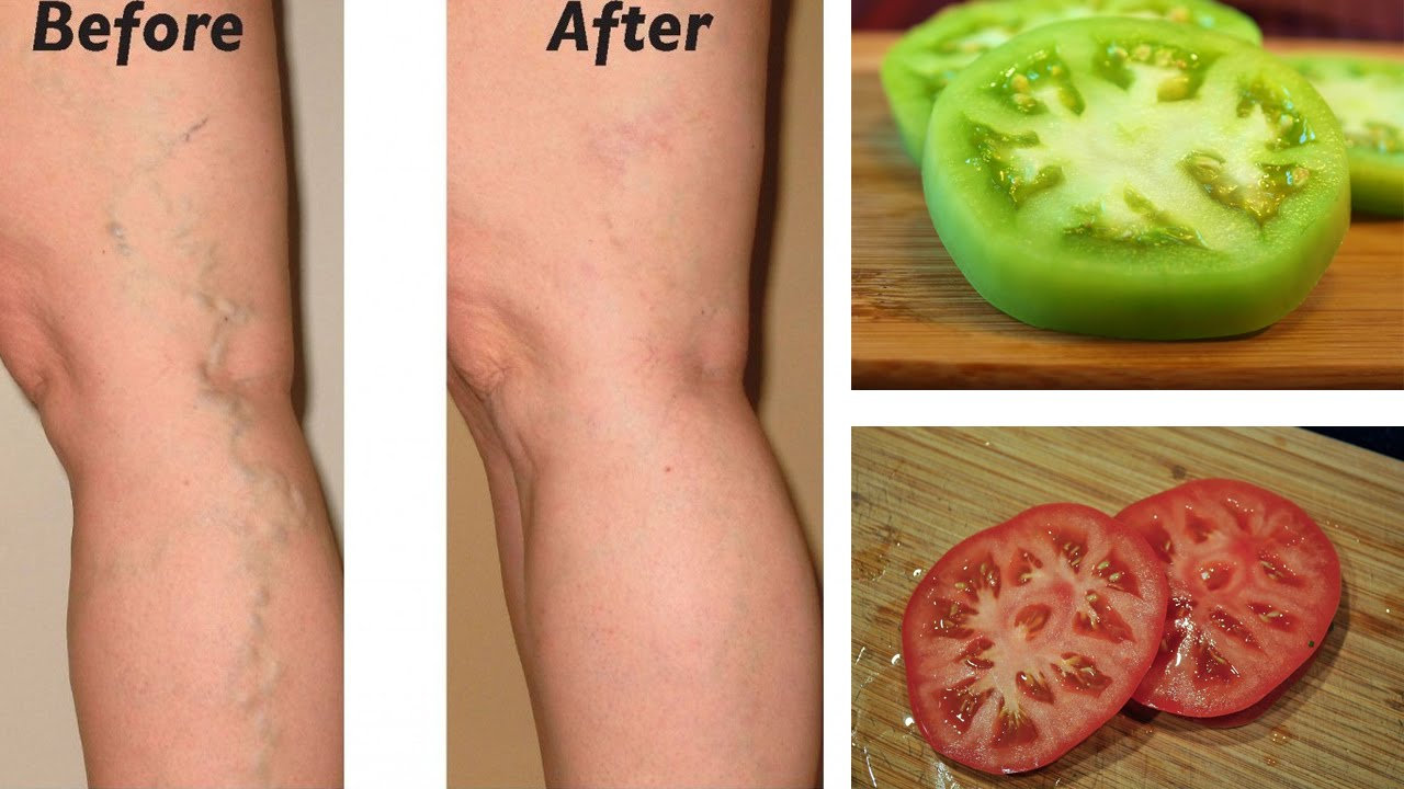 can varicose veins be cured