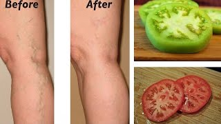 Natural Remedies for Varicose Veins