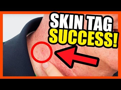 Auto TagBand Follow Up- Skin Tag Success!