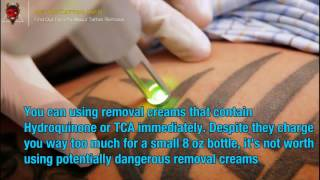tattoo removal before and after everything you need to know about tattoo removal page teaser