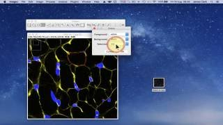 Using ImageJ to measure cell number and cross-sectional area of confocal images