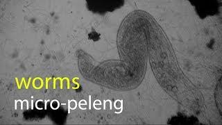 micro-peleng: worms
