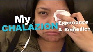 My Chalazion Experience & Remedies