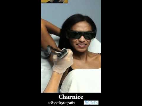Charnice is happy to have found SCMS since we offer laser hair removal for  black people