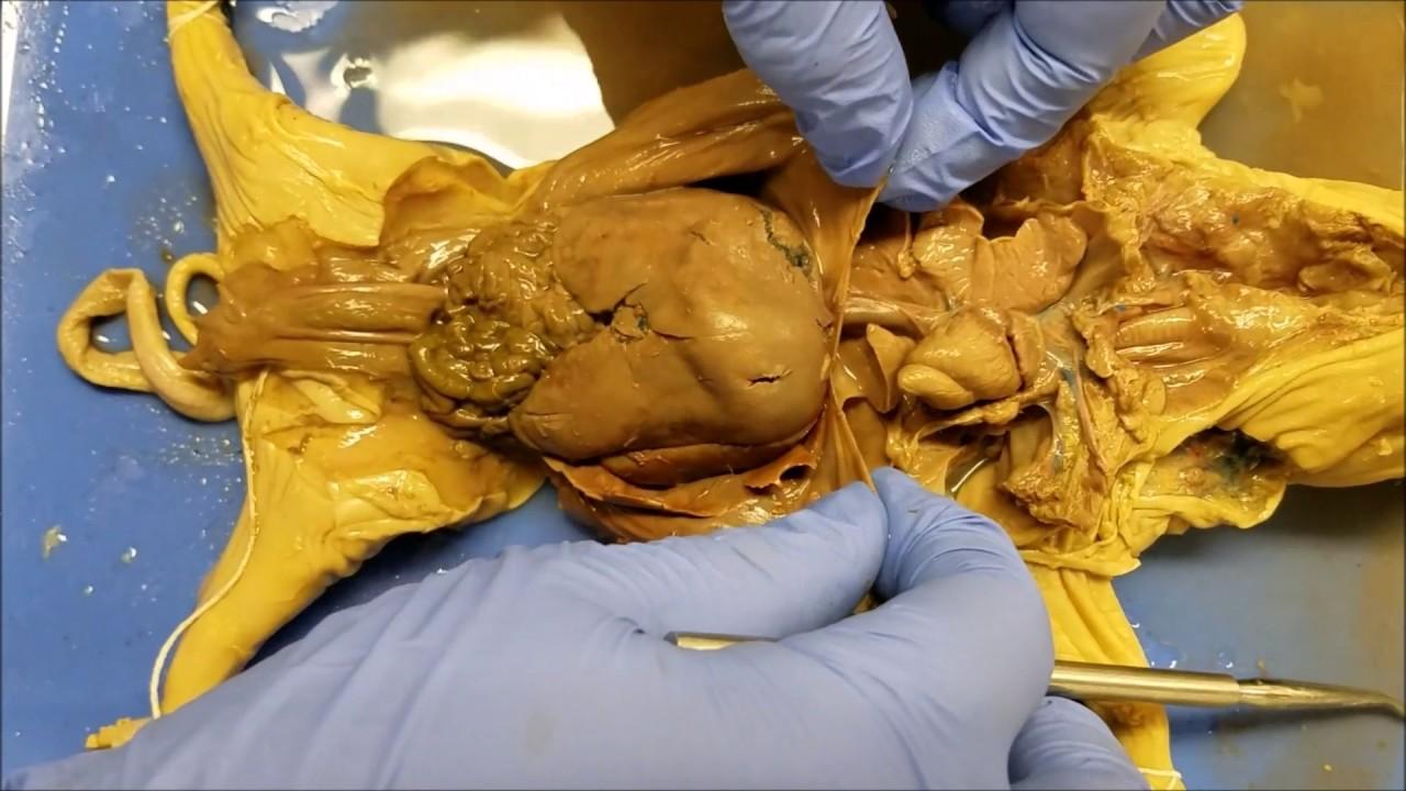Identifiying Fetal Pig Stuctures