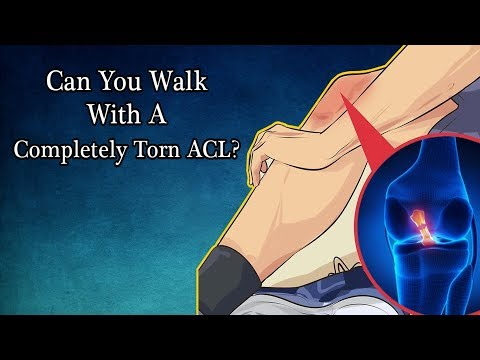 Can You Walk With A Completely Torn ACL