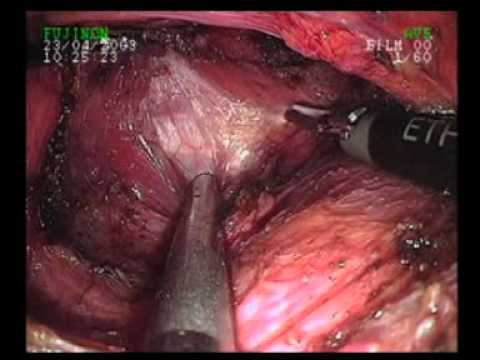 Endoscopic Thyroidectomy by Axillary Approach: Rajavithi Hospital
