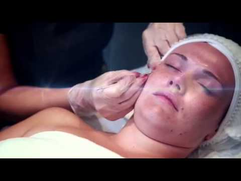 Milia removal facial youtube milia removal facial solutioingenieria Image collections