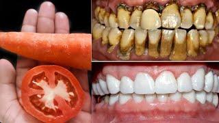 2 நிமிடங்களில் அழுக்கு மஞ்சள் பற்களை வெள்ளையாகவும், முத்து போல பளபளப்பாகவும்மாற்றும்|Teeth Whitening
