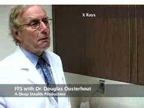 Image result for dr. osterhout ffs