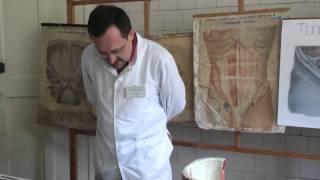 Хирургическая анатомия и оперативное лечение пупочных грыж и грыж белой линии живота