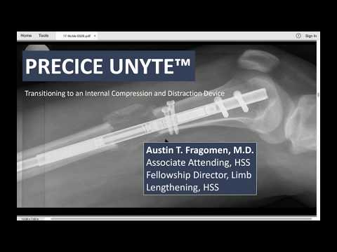 Treating Challenging Fractures and Nonunions