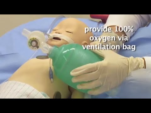 """""""Endotracheal Tube Suctioning"""" by Mary-Jeanne Manning, RN for OPENPediatrics"""