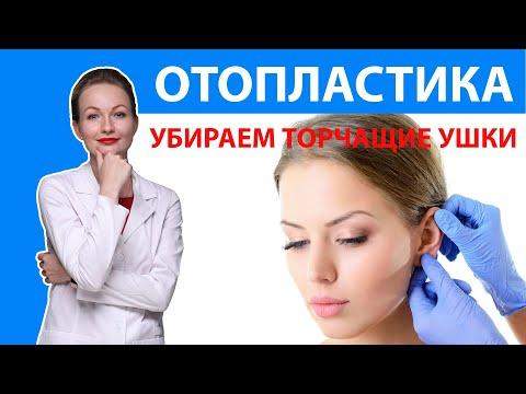 ОТОПЛАСТИКА | Лопоухость, что делать? Коррекция ушей. Пластическая операция на уши. Силкина Кристина