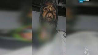 صباياالخير| كارثة بالفيديو سفاحيين المستشفيات الحكومية و قتلهم لمريض بدون أدنى رحمة..!
