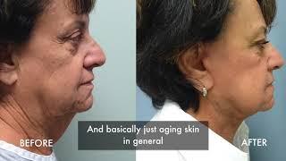 Understanding Facelift Surgery - Tampa Cosmetic Surgeon Dr. Joseph Castellano