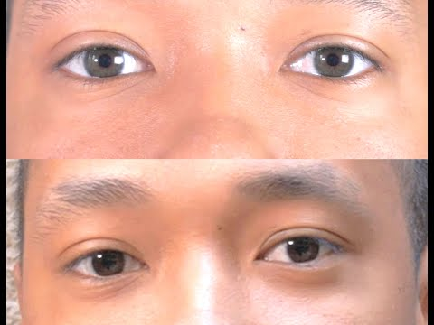 Change your eye color naturally with iREX Laser   - Irex Laser