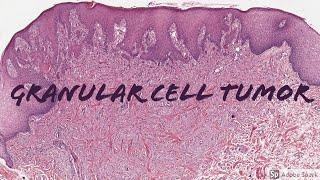 Tumor gusi ( epulis ) karena gigu berdesakan.