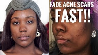 How to Get Rid of Acne & ACNE SCARS FAST AT HOME!!  REMOVE DARK SPOTS & HYPERPIGMENTATION FAST!!